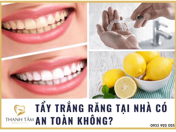 Tẩy răng tại nhà