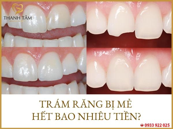 Trám răng bị mẻ hết bao nhiêu tiền