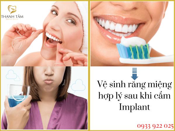 Vệ sinh răng miệng hợp lý sau khi cắm implant