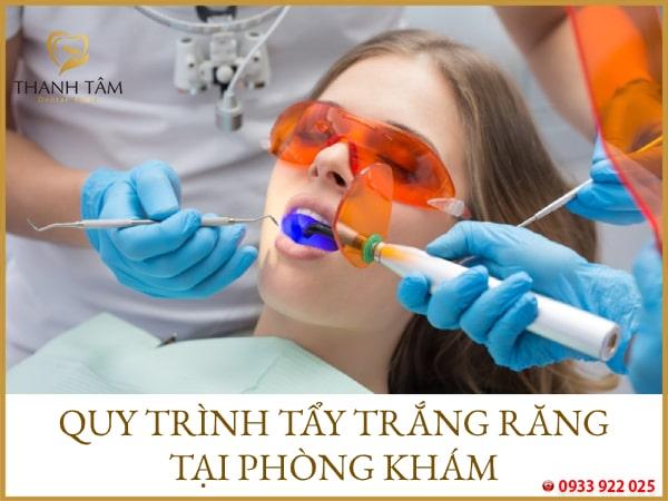 Quy trình tẩy trắng răng tại nha khoa
