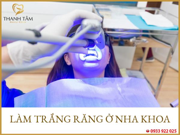 Làm trắng răng ở nha khoa
