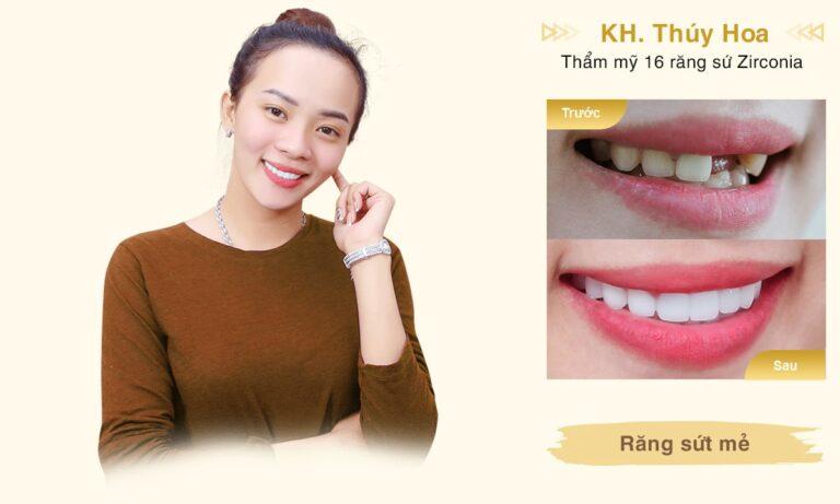 rang su KH Thuy Hoa Desktop min 1