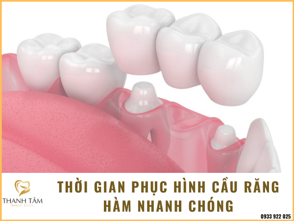 Bắc cầu răng hàm