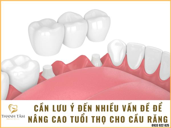 Quan tâm đến nhiều vấn đề để nâng cao tuổi thọ cho cầu răng sứ
