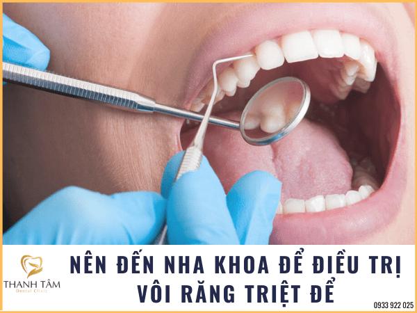 Điều trị tình trạng bị vôi răng triệt để tại nha khoa