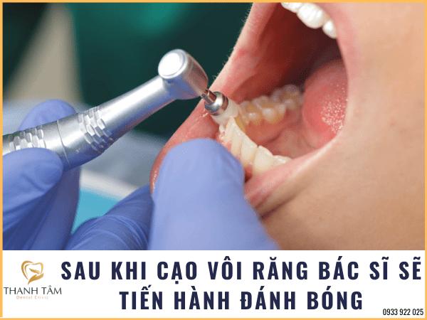Đánh bóng răng kết thúc quá trình cạo vôi răng