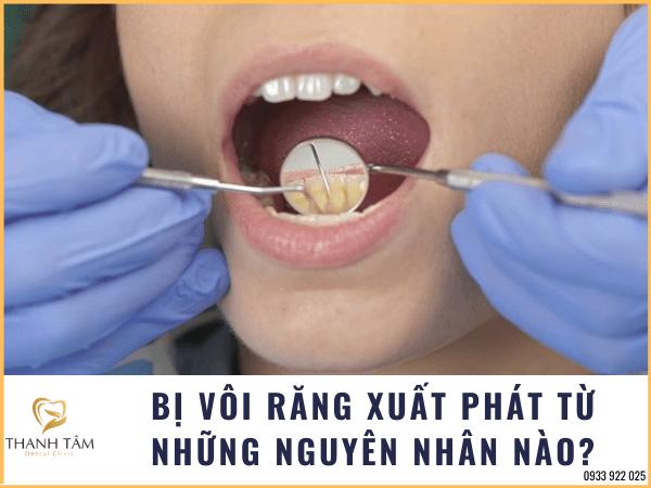 Bị vôi răng