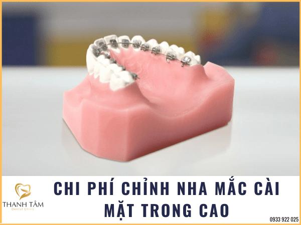Chi phí niềng răng mắc cài mặt trong cao