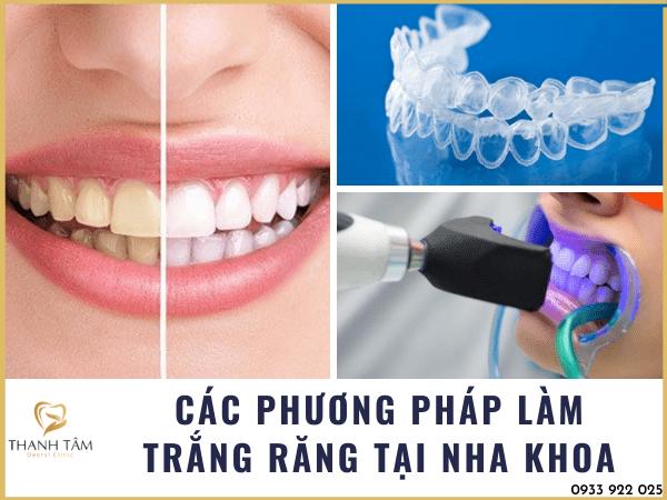 các phương pháp làm trắng răng tại nha khoa