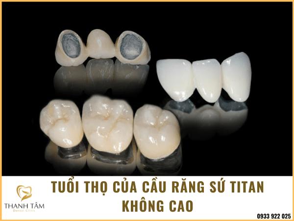 Nhược điểm của cầu răng