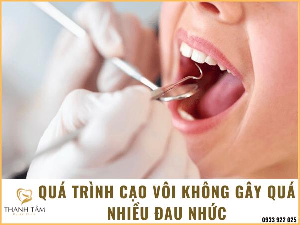 Có nên lấy cao răng hay không