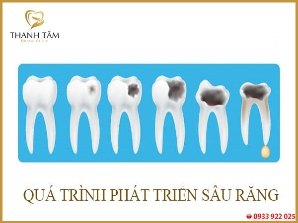 Tủy răng bị chết