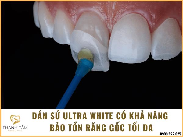Bảo tồn răng gốc tối đa