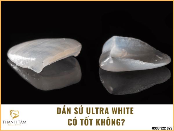 dán sứ Ultra White