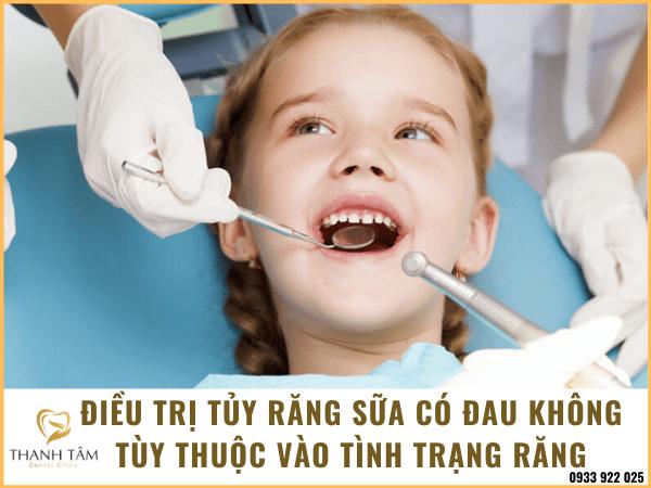 Điều trị tủy răng sữa có đau không