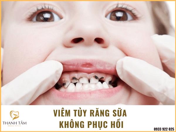 Viêm tủy răng sữa không hồi phục