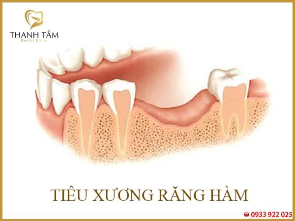 nhổ răng số 6