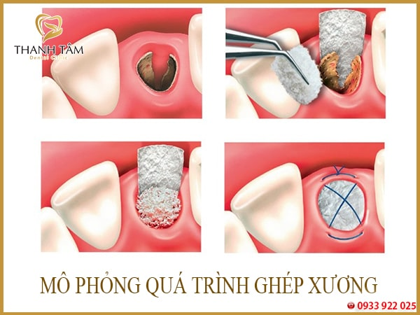 Răng hàm bị tiêu xương