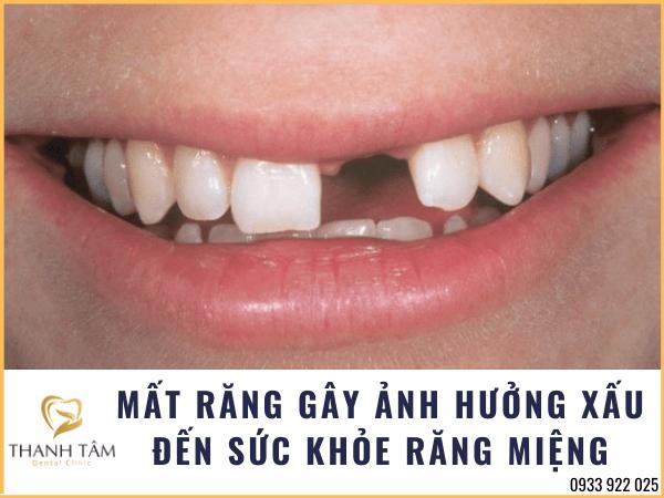 Mất răng gây ảnh hưởng xấu đến sức khỏe răng miệng