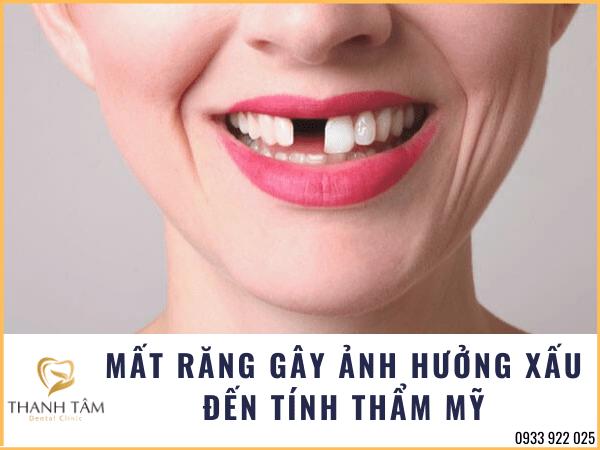 Mất răng gây ảnh hưởng tính thẩm mỹ