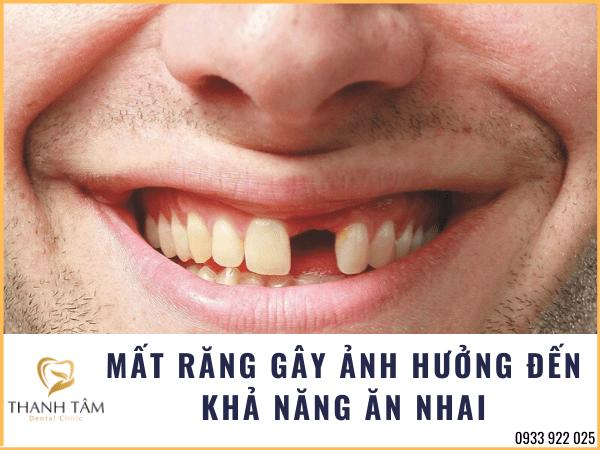 Mất răng gây ảnh hưởng đến khả năng ăn nhai