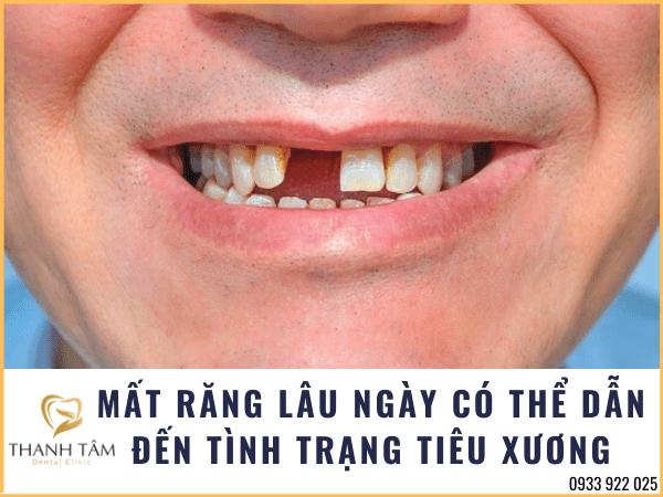mất răng có thể dẫn đến hiện tượng tiêu xương