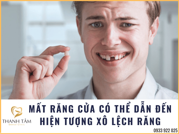 Mất răng có thể dẫn đến hiện tượng xô lệch răng