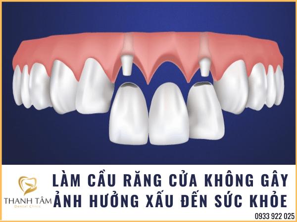 Quá trình làm cầu răng cửa không mất phức tạp