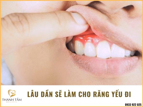 Làm cho răng yếu đi