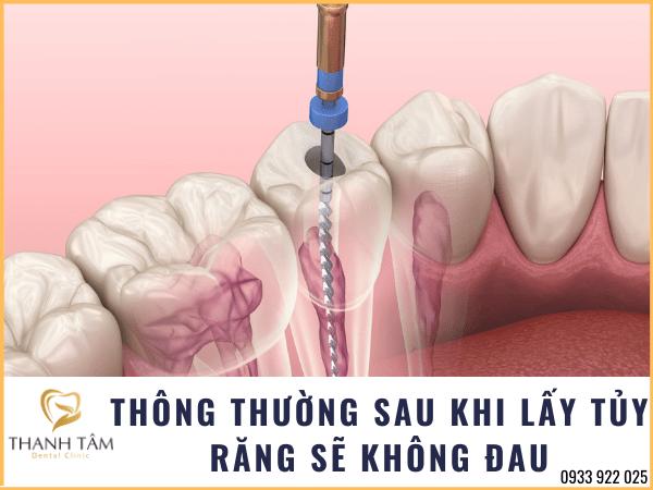 Sau khi lấy tủy răng thường không đau