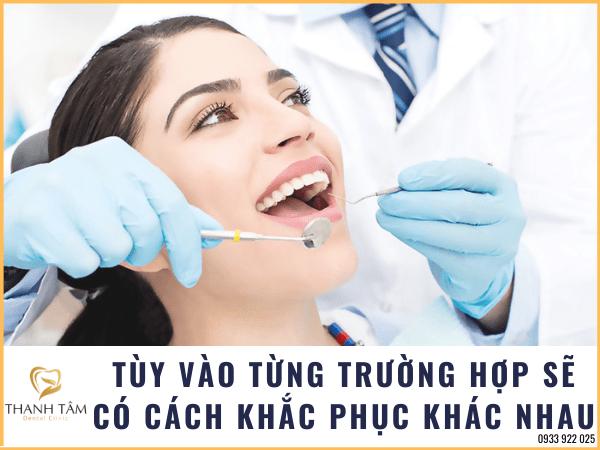 Cách khắc phục lấy tủy răng xong vẫn đau