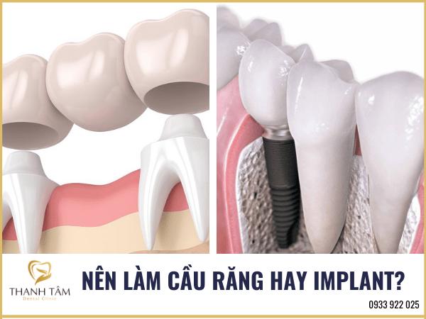 Nên làm cầu răng hay Implant
