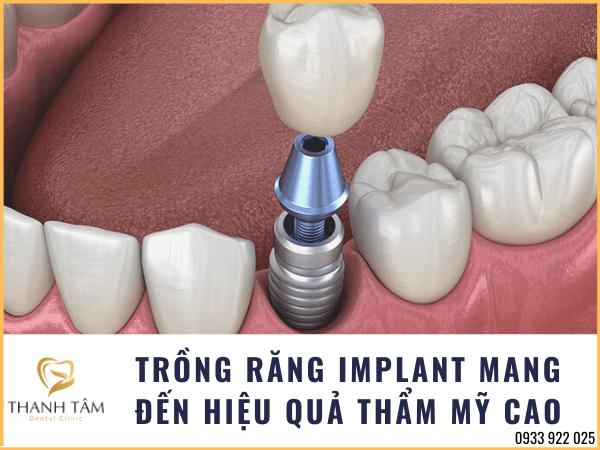 Răng Implant có tính thẩm mỹ cao