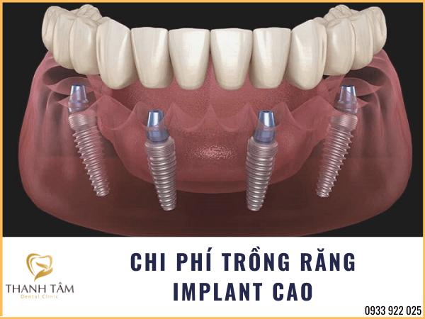 Chi phí trồng răng Implant cao