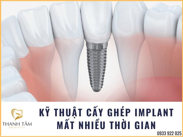 Cấy ghép Implant mất nhiều thời gian