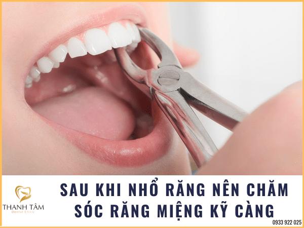 Nên chăm sóc răng miệng kỹ càng sau khi nhổ răng