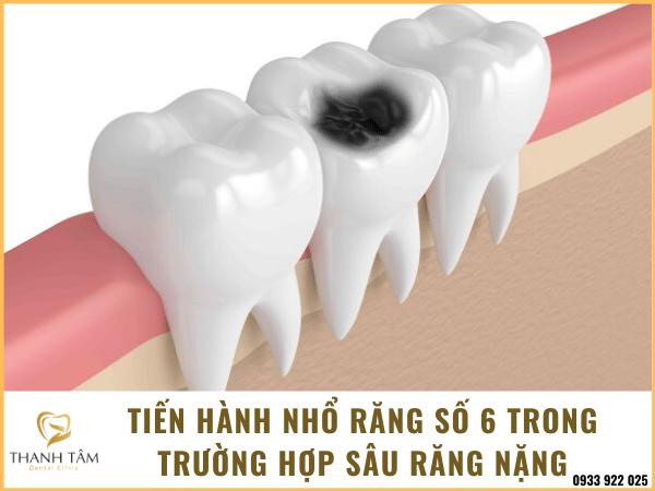 Nhổ răng sâu số 6 hàm dưới