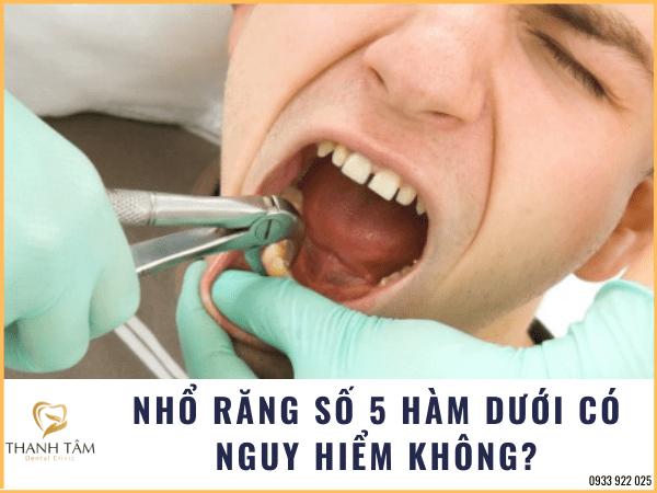 Nhổ răng số 5 hàm dưới