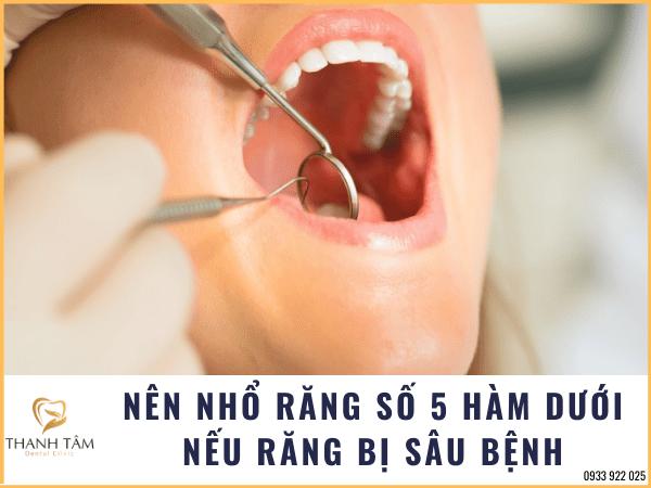 Nên nhổ răng trong trường hợp răng bị sâu bệnh