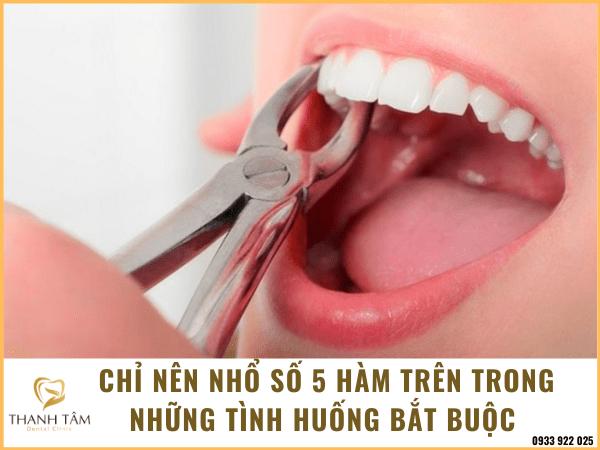 nhổ răng số 5 hàm trên