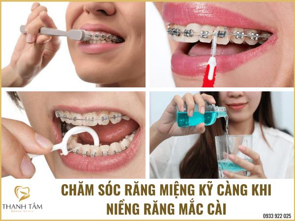 Chăm sóc sức khỏe răng miệng kỹ càng