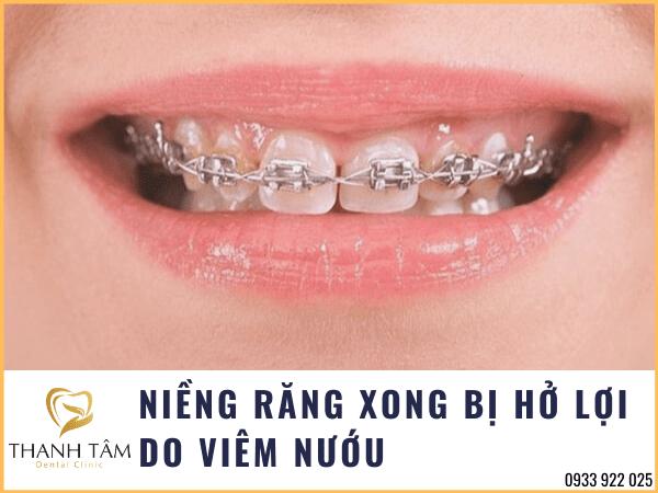 Niềng răng bị hở lợi do viêm nướu