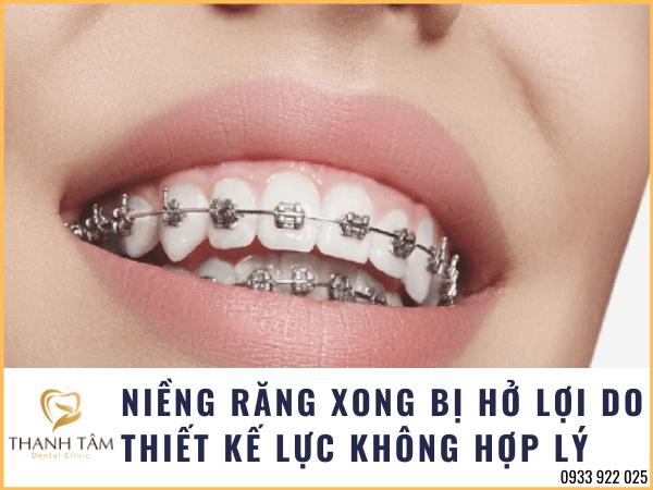 niềng răng xong bị hở lợi do thiết kế lực không phù hợp