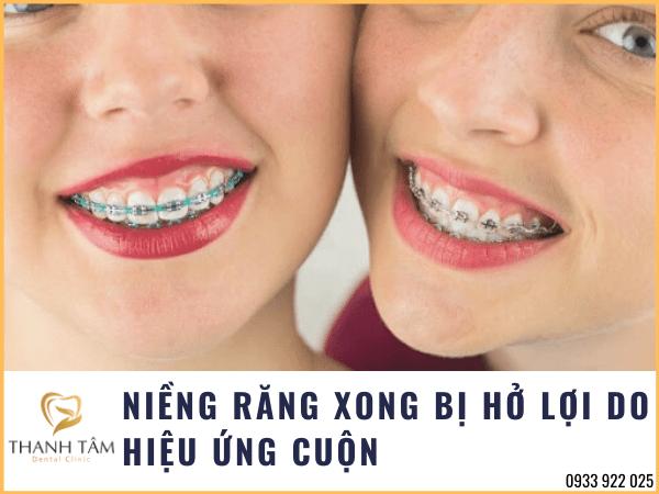 Niềng răng bị hở lợi