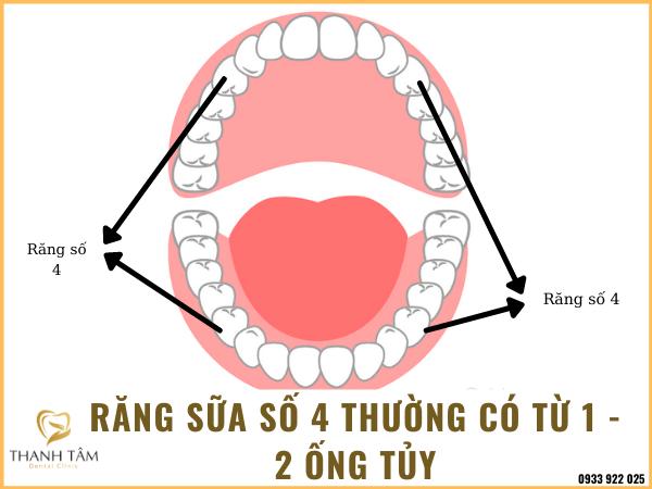 Răng sữa số 4 có mấy ống tủy