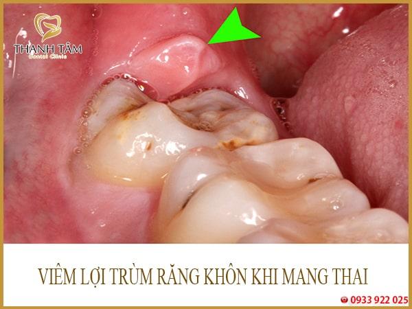 Viêm lợi trùm răng khôn khi mang thai