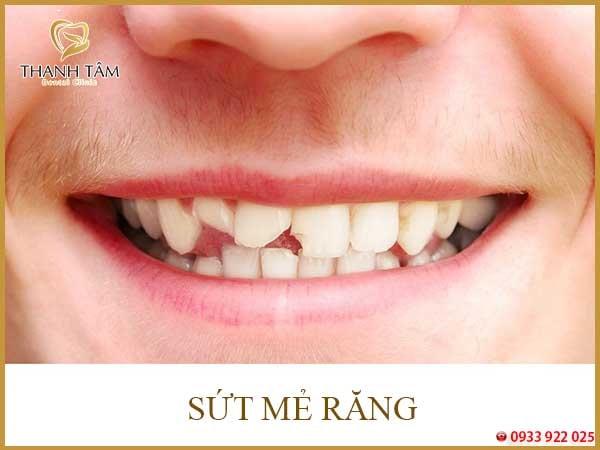 sứt mẻ răng