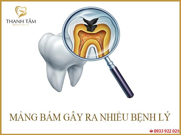 Mảng bám đen chân răng