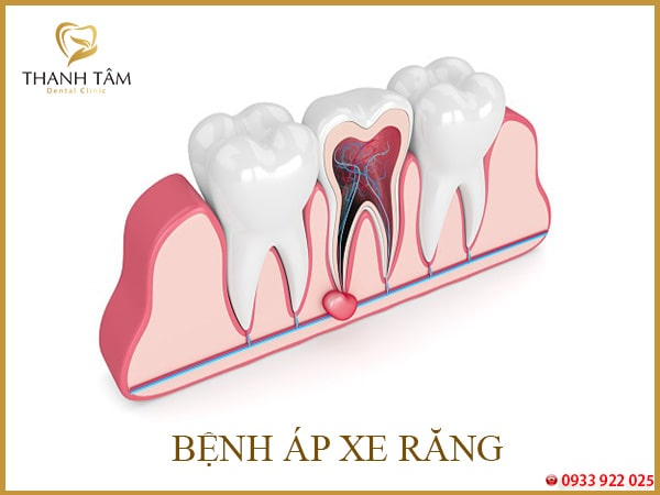 Bệnh áp xe răng