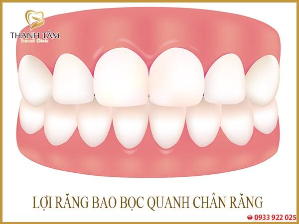 Lợi răng